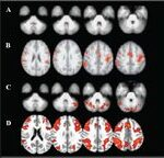 Functional Cortical and Cerebellar  Reorganization in a Case of Moyamoya Disease