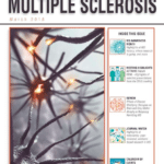 Hot Topics in Multiple Sclerosis